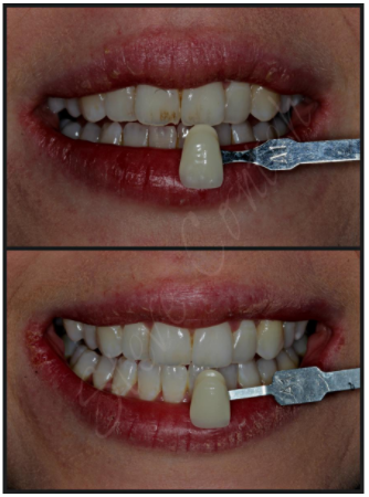 A photo of Dental veneers