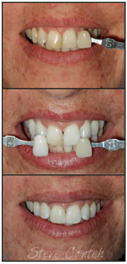 Teeth whitening dental Veneers