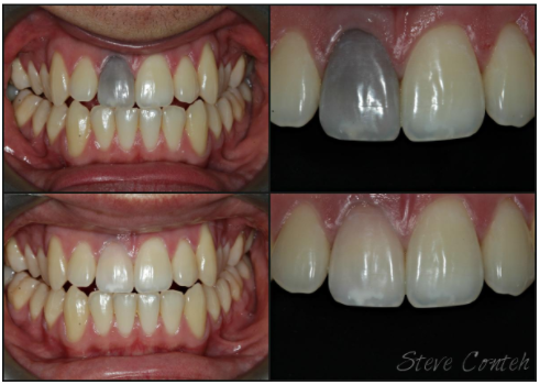 Teeth Whitening Case Study