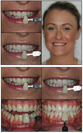 home teeth whitening overnight formula