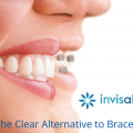 invisalign-blog-the-clear-alternative-to-braces