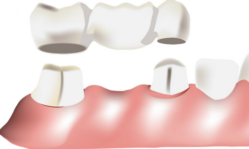 teeth bridges