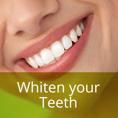 Savernake-teeth-whitening