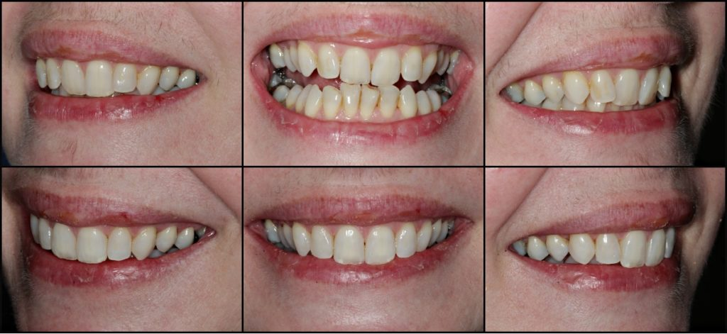 Invisalign Case Study Before and After 2 - Cathy