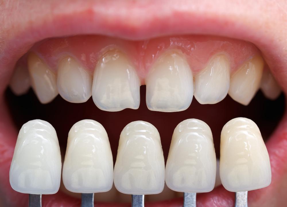 Kết quả hình ảnh cho Dental veneer